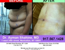 liposuction-tummy-tuck-16