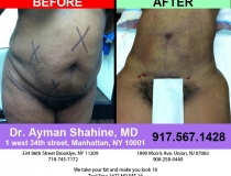 liposuction-tummy-tuck-20