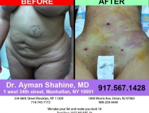 liposuction-tummy-tuck-21