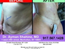 liposuction-tummy-tuck-23