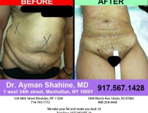 liposuction-tummy-tuck-54