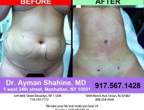 liposuction-tummy-tuck-65