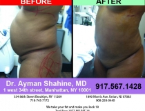 liposuction-tummy-tuck-66