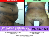 liposuction-tummy-tuck-68