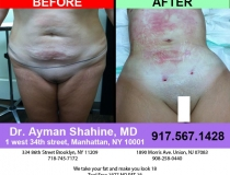 liposuction-tummy-tuck-7